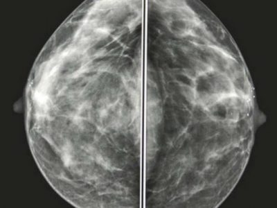 AI outperforms radiologists in breast cancer diagnosis